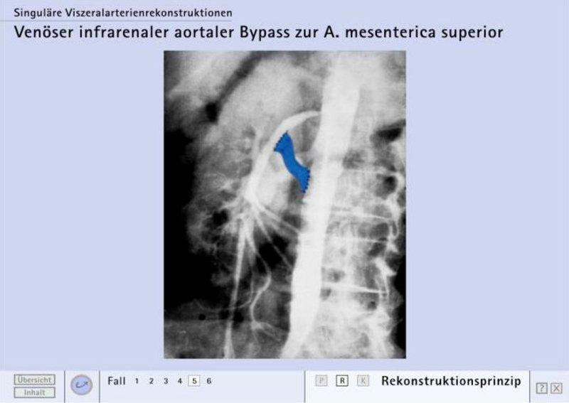 Durchblutungsstörungen Bauchorgane « Leistungsspektrum ...