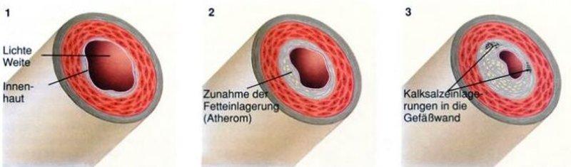 Durchblutungsstörungen « Leistungsspektrum « Gefäßchirurgie « Die ...